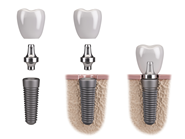 Illustration of dental implant components
