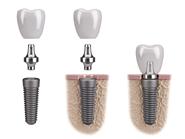 Illustration of dental implant components
