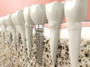 An illustration of a dental implant.